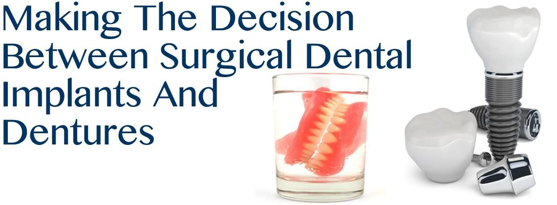 Making The Decision Between California Surgical Dental Implants And Dentures